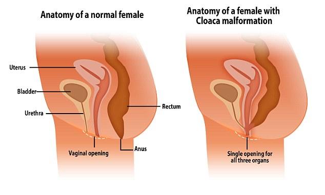 cloaca malformada engravidar sexo anal